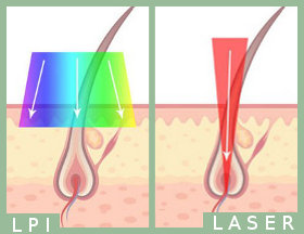 epilation definitive par laser ou lpi
